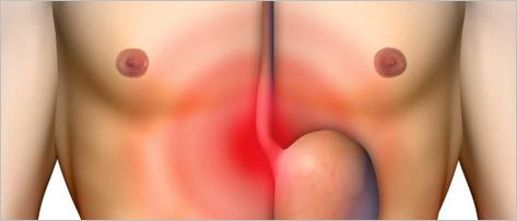 Esôfago de Barrett: qual o real risco de câncer esofágico?