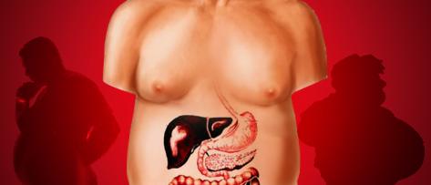 A obesidade e as suas complicações no sistema digestivo.