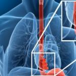 Esôfago de Barrett: conduta atual no controle e tratamento desta complicação do refluxo gastroesofágico