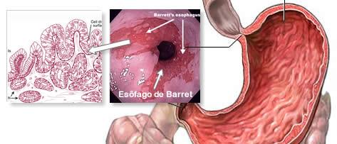 Esôfago de Barrett: medicação ou cirurgia?