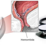 Hemorróidas e Proctologista: por que ser avaliado por este especialista?