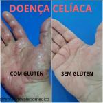 Doença celíaca: uma alteração sistêmica.