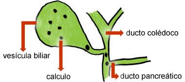 Cálculo de Vesícula Biliar ( Colelitíase )