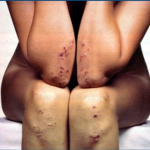 Doença Celíaca (glúten) e Dermatite Herpetiforme