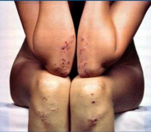 dermatite herpética