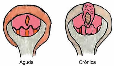 Coceira Vagina, lábios, vulva área Nuces